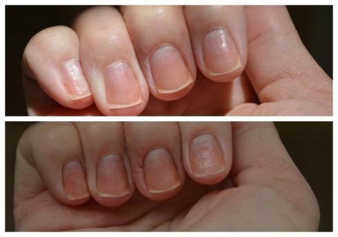 Não se assustem com o machucado que apareceu na segunda foto. Eu tenho dermatite de contato na mão direita e obviamente que quando entra em contato com coisas químicas acaba irritando, foi só isso, o produto não removeu meu dedo! hahah