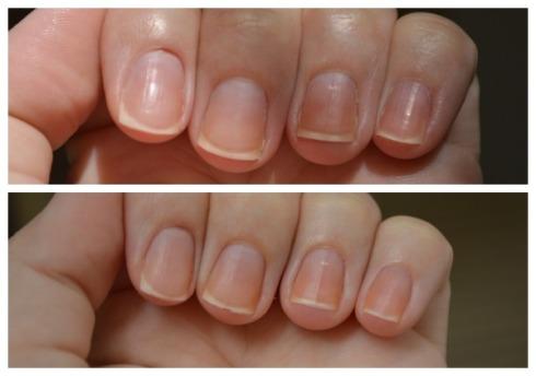 A primeira foto antes, e a segunda foto depois. Dá pra ver a mudança, sim?